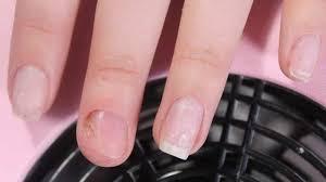 acrylic nail fungus fungus causes