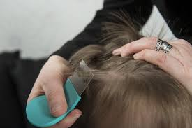 headlice and nits pictures what do