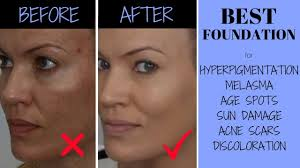 hyperpigmentation melasma acne s
