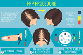 acell prp hair regrowth injection