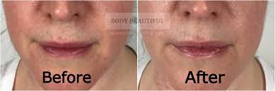 tria age defying laser before vs after
