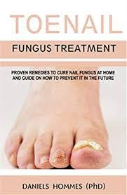 toenail fungus treatment natural