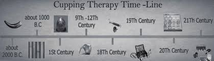 History of cupping (Hijama): a narrative review of literature