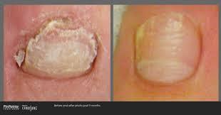 pinpointe foot laser kent wa foot doctor