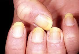 ayurvedic nail ysis what do your