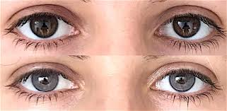 is changing the colour of your eyes