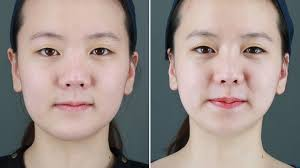 growing obsession with cosmetic surgery
