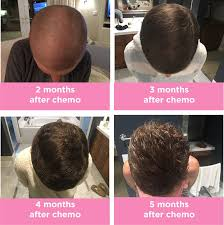 5 months after chemo hair progression