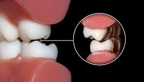 Image result for bruxism symptoms images