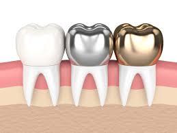 Zahnarzt Krone Mannheim | Zahnersatz | LUX Zahnärzte