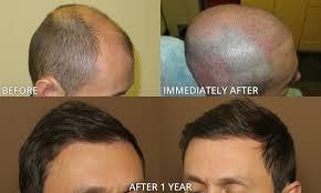 fue hair transplantation before and