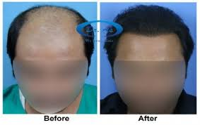 hair transplant doctor reviews