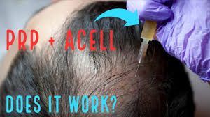 prp acell hair loss treatment you