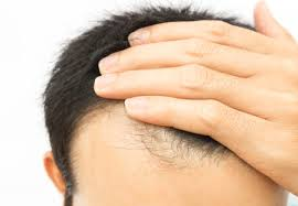 Hair Loss Got You Down? Platelet-Rich Plasma May Regrow It ...