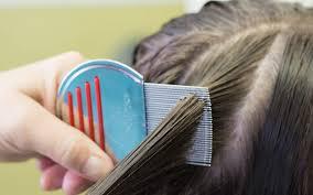 5 mon myths ociated with head lice
