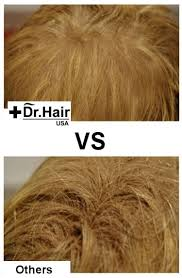 frequently asked questions dr hair usa