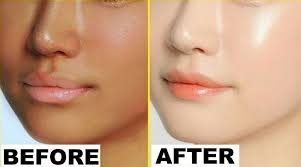 Image result for before and after whitening cream