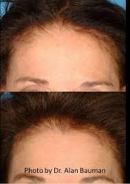 hairline widows peak hair transplant