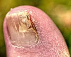 vicks vaporub for toenail fungus