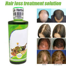 The Best Natural Hair Loss Remedies ile ilgili görsel sonucu