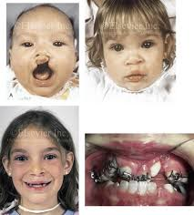 33 cleft orthognathic surgery the