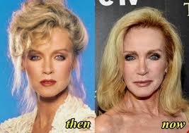 Actress Donna Mills turns 78 today🎉🎂.... - The Iconic Drive ...