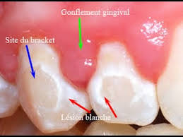 home remes to reduce gum swelling