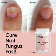 nail bright pills fungus treatment