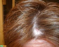 stop and reverse hair loss in women