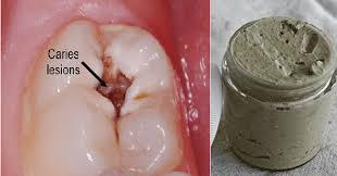 heal cavities gum disease and whiten