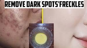 pigmentation dark spots acne scars