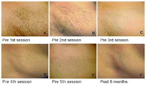 permanent diode soprano hair removal
