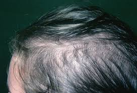 hair scalp say about your health
