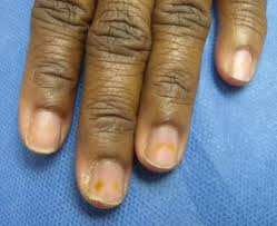 onycholysis an overview