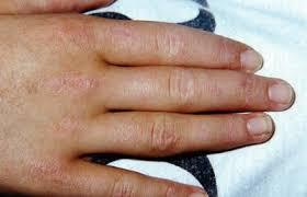 pediatric rheumatic diseases