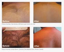 before after mens laser hair removal