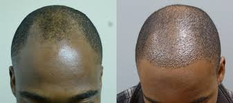 hair transplants before after
