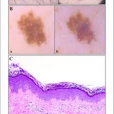 melanocytic nevi after laser hair removal
