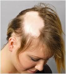 alopecia areata treatment at