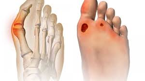 10 easy ways to relieve the pain of bunions