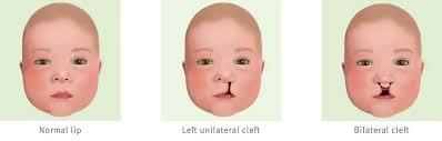 cleft lip fact sheet children s