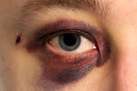 fake black eye without makeup