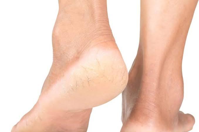 """Resultado de imagem para rachadura nos pés"""""""