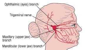 trigeminal neuralgia tic douloureux