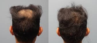 hair restoration savannah 1 neograft