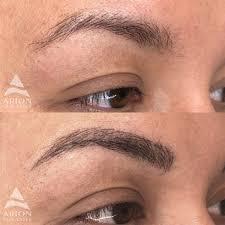 permanent makeup arion skin laser