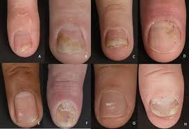 nail psoriasis a review of treatment