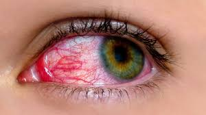 8 mon myths about pink eye