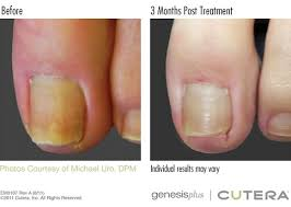 cutera genesis toenail fungus treatment