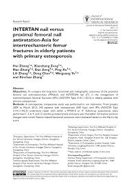 intertan nail versus proximal fem